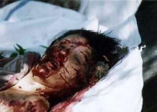 Αυτή η όμορφη νεαρή κοπέλα βιάστηκε Σερβίας και βασανίστηκε (στήθη της κόπηκαν) - τότε ξυλοκοπήθηκε μέχρι θανάτου με μια ράβδο χάλυβα από τις αλβανικές ισλαμιστές Ναζί ληστές στο Κοσσυφοπέδιο. Γεννητικά όργανα της ήταν ακρωτηριασμένα πέρα recognition.This συνέβη μετά Δυνάμεις του ΝΑΤΟ εισήλθαν στο Κοσσυφοπέδιο.This beautiful young Serbian girl was raped and tortured (her breasts were cut off) – then she was beaten to death with a steel rod by the Albanian Islamist Nazi bandits in Kosovo. Her genitalia were mutilated beyond recognition.This happened after NATO Forces entered Kosovo.
